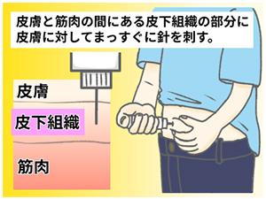 インスリン注射方法イメージ