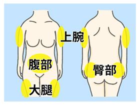皮下注射部位イメージ