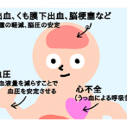 第1回 利尿薬は電解質のバランスに注意
